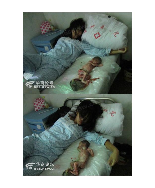 Feng_Jianmei_Abortion